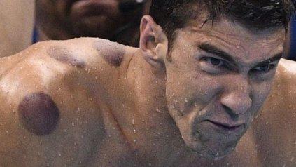 Al parecer Phelps utiliza la versión más dolorosa de la terapia, que requiere calor.<div>&amp;nbsp;</div>