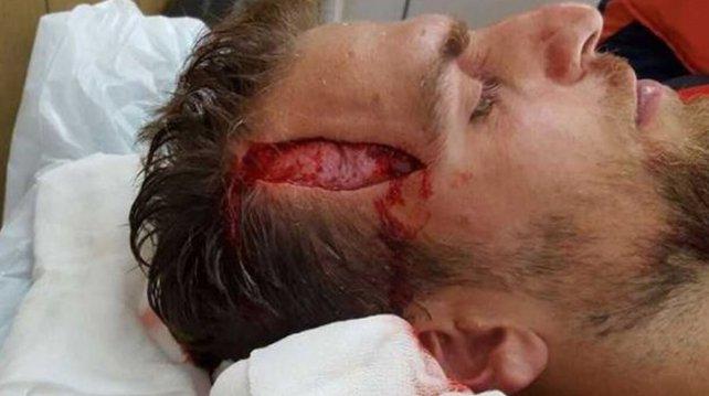 Un jugador del ascenso sufrió un impactante golpe en la cabeza